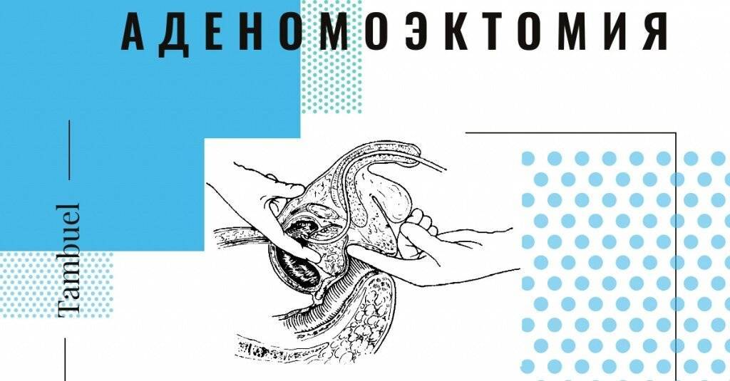 Последствия операции на аденоме простаты: удаление через мочеиспускательный канал,тур,эмболизация артерий | prostatitaid.ru