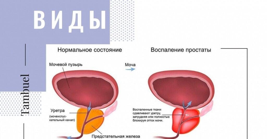 Причины возникновения простатита у мужчин: факторы развития заболевания, роль возраста, симптомы